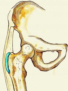 Blauw: slijmbeurs op het benige uitsteeksel van het bovenbeen
