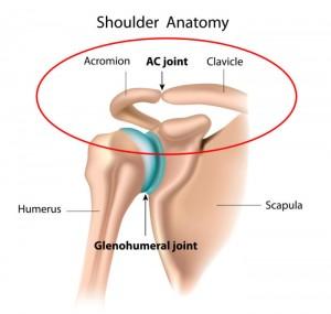 ac-gewricht pijn schouder artrose