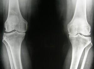 Röntgenfoto van twee versleten knieën.
