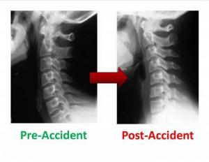 Afname van de normale curve van de nek in rust.
