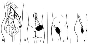 Maigne Syndroom behandeld met Neuroprolotherapie