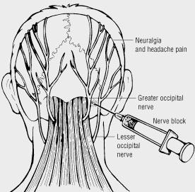 Occipitalis Zenuw, Hoofdpijn, Behandeling met Neuroprolotherapie
